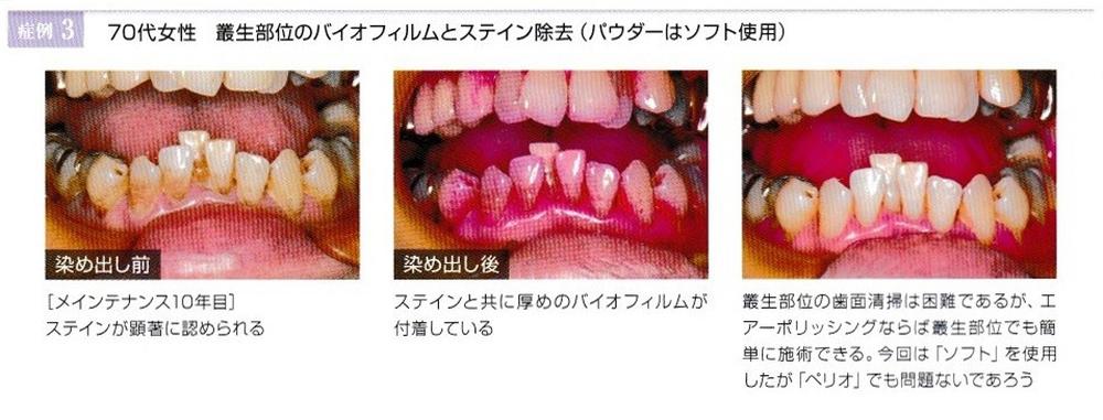 「痛くない歯のクリーニング」