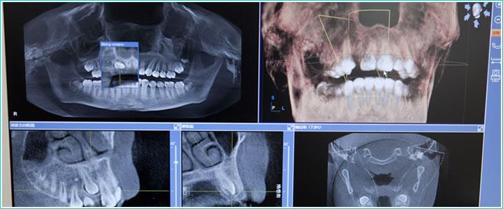 事前の検査や口腔内環境