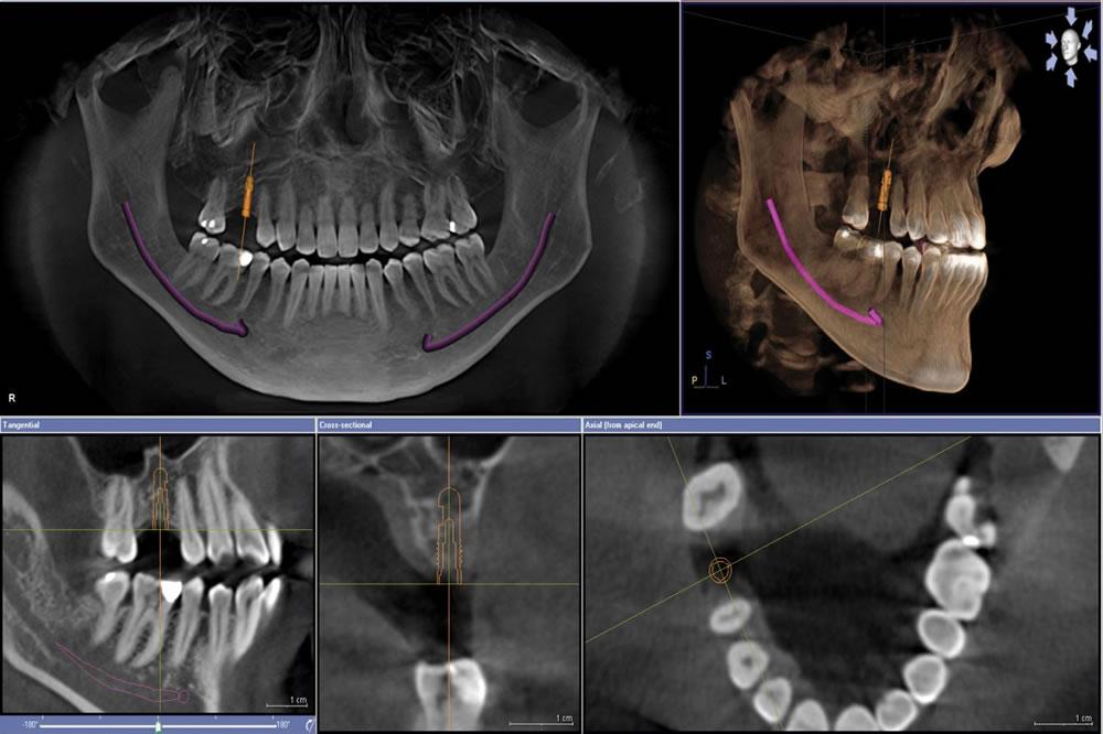 CTでの術前シミュレーション