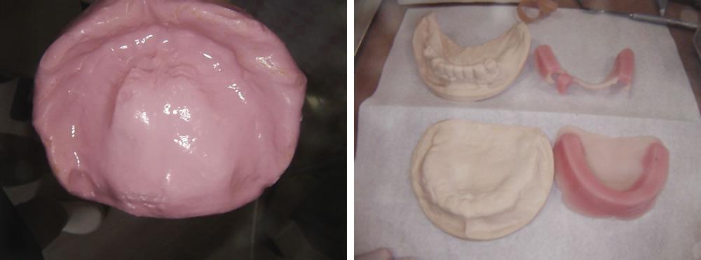 口腔内の型取り