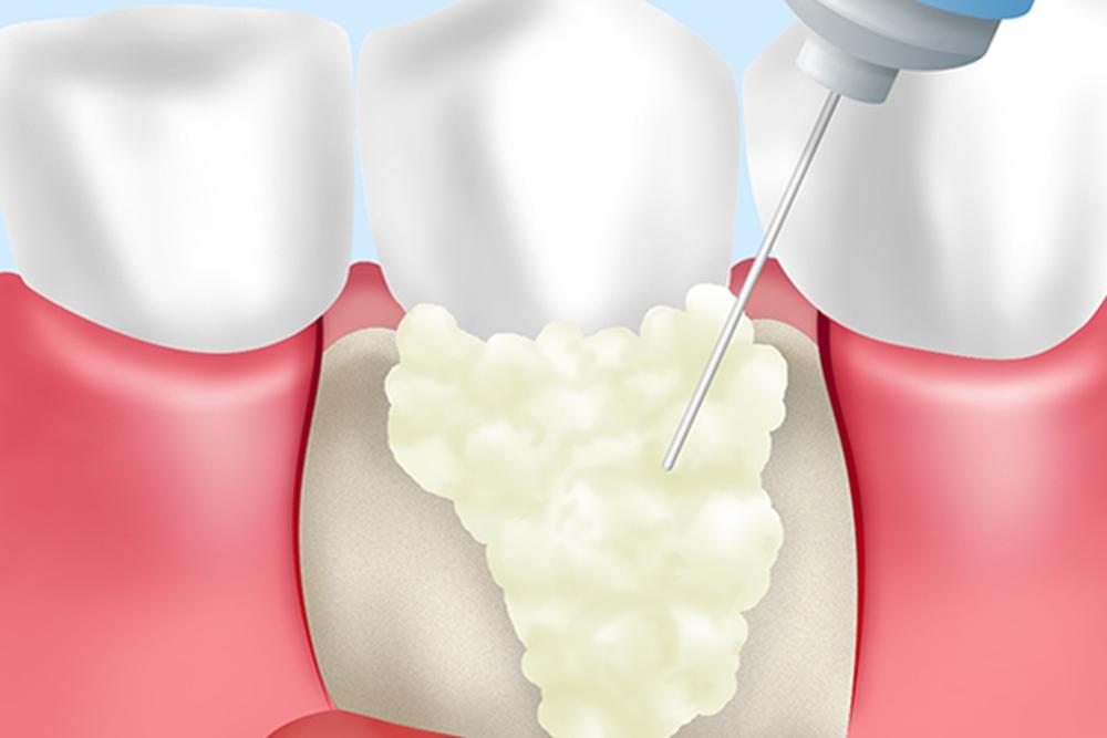 歯周組織の再生
