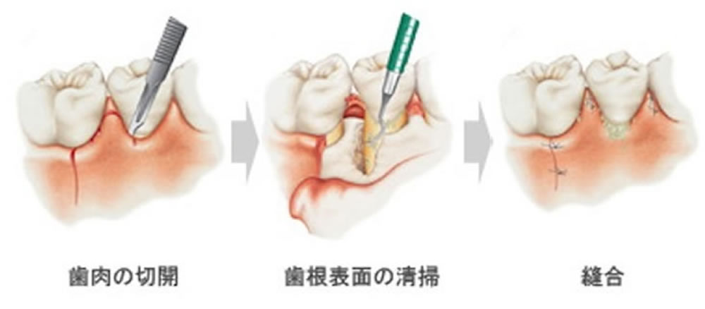 歯周外科治療(フラップ手術)